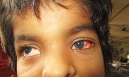 Glaucoma child