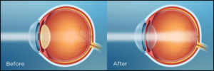 operated eye vision